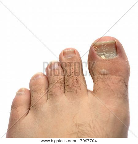 Cracked Fungus Toe Nail