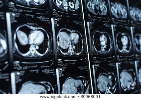 research in medicine. CT scan of the patient.