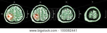 Brain tumor ( Film CT-scan of brain : show part of brain with tumor )