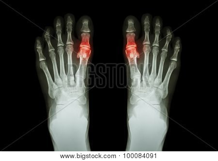 Gout , Rheumatoid Arthritis (Film X-ray Both Foot And Arthritis At First Metatarsophalangeal Joint)