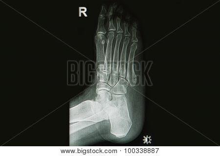 X-rays Image Of  Injury  Foot And Toe Fracture