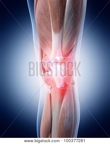medical 3d illustration of a painful knee