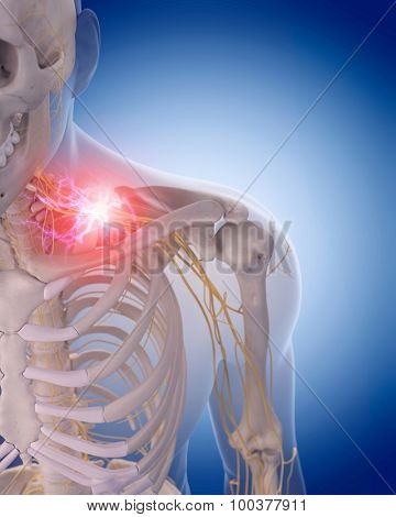 medically accurate illustration of painful cervical nerves