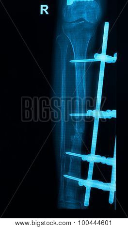 Leg X-rays Image Showing Plate And Screw External Fixation Tibia And Fibula Bone