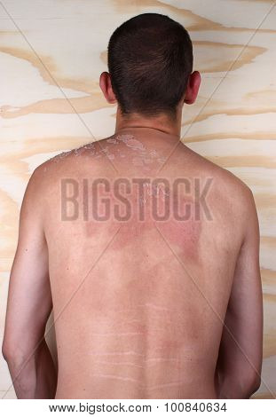 Sunburned Back Body