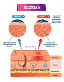 Eczema Vector Illustration. Labeled Anatomical Structure Comparative Scheme. Educational Infographic poster