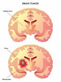 foto of radiation therapy  - medical illustration of the effects of the brain tumor - JPG