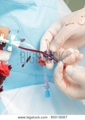 Setting Blood Catheter In Hospital. Close-up