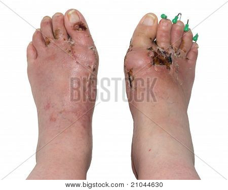Left and Right Feet after Orthopedic Surgery