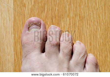 Right Foot Toes