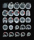 stock photo of cat-scan  - Ischemic stroke of human brain CT - JPG