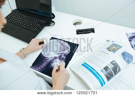 Close up of doctor holding x-ray or roentgen image
