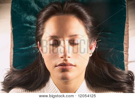 Woman with acupuncture needles in ears