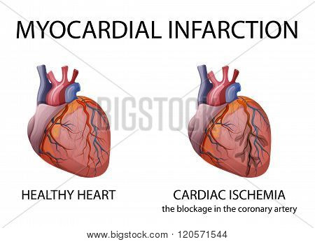 illustration of a healthy human heart and heart attacks