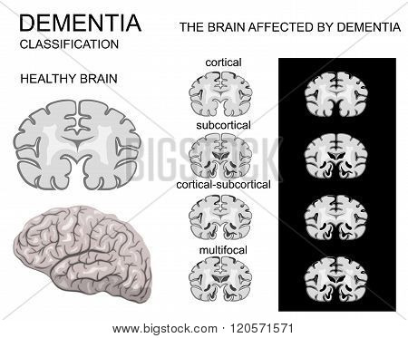 dementia Alzheimer disease and its classification. nervous system