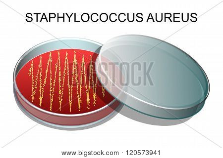 illustration of a culture of Staphylococcus aureus in a Petri dish