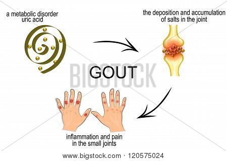 the mechanism of development of gout. pain in the joints.