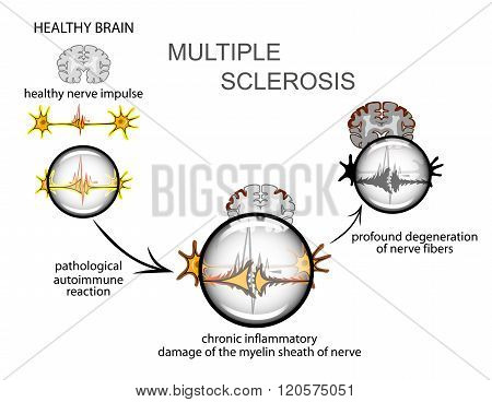 multiple sclerosis. The mechanism of the disease development.