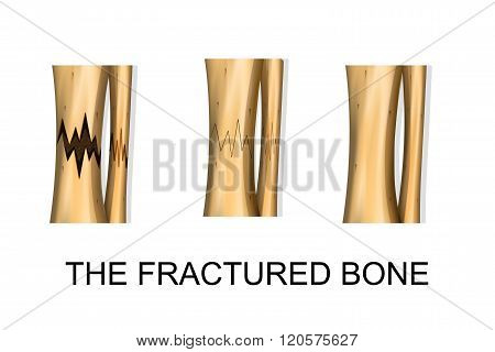illustration of bone fracture fracture healing. vector
