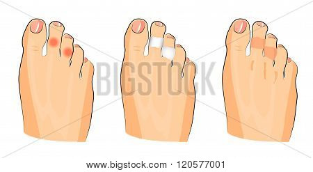 illustration of corns on the toes and glued patches