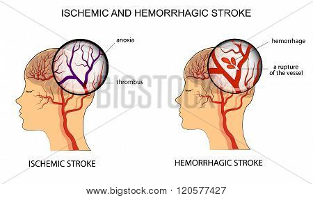 illustration of the vessels of the brain and a brief description of the causes of stroke