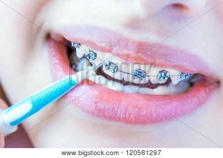 Close up female teeth with braces and interdental brush for dental braces hygiene.