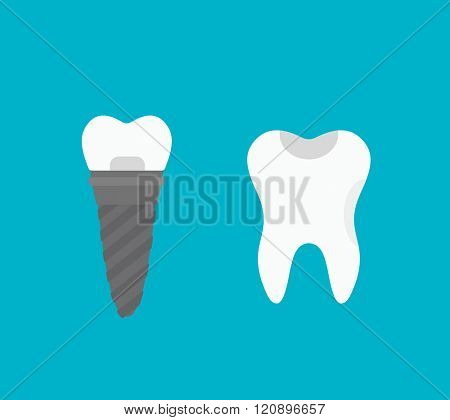 Tooth implant vector illustration. Tooth implant vector isolated on white background. Tooth implant vector icon illustration. Tooth implant vector isolated vector. Tooth implant vector flat silhouette