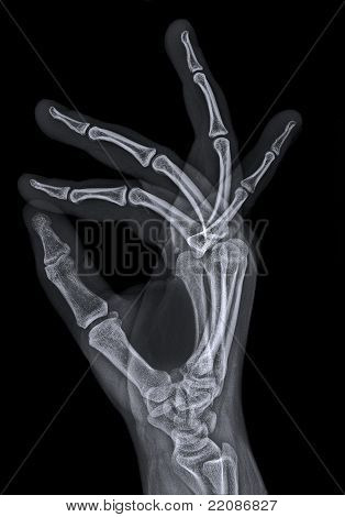 X ray or radiograph of hand from seen sideways and spreading the fingers