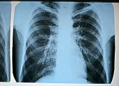 image of pneumonia  - focus on center - JPG