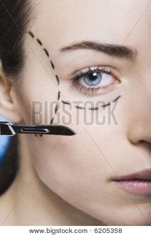 Young Woman With Marks On Her Face Gets Surgery