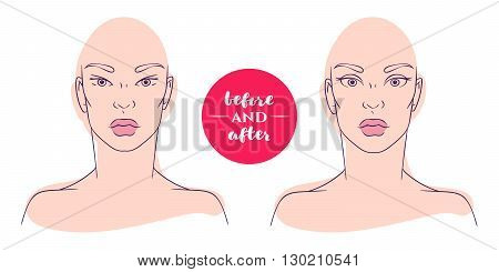 Portrait of a woman before and after with cosmetic defects. Plastic surgery and correction of deficiencies in appearance. Blepharoplasty. Correction of epicanthus, Asian eyelids and drooping eyelids.