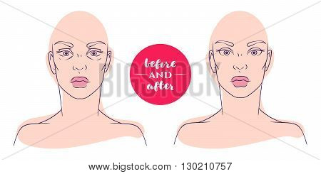 Portrait of a woman before and after with cosmetic defects. Plastic surgery and correction of deficiencies in appearance. Blepharoplasty. Hernia lower eyelids