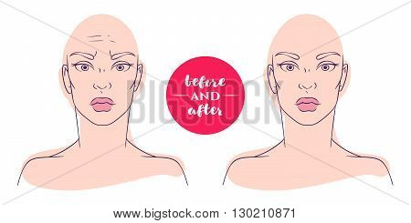 Portrait of a woman before and after with cosmetic defects. Plastic surgery and correction of deficiencies in appearance. Wrinkles on forehead