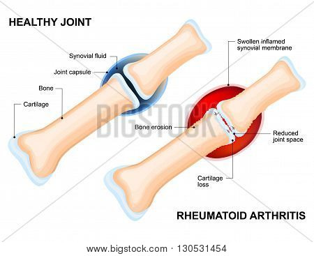 Normal Joint and Rheumatoid Arthritis. Rheumatoid Arthritis (RA) is an inflammatory type of arthritis that usually affects joint. auto immune disease. The body's immune system mistakenly attacks healthy tissue.