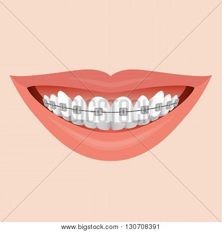 Closeup Human Lips Smile with Metal Braces