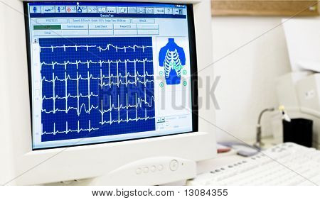 Desk of cardiologist with EKG diagram on computer screen.