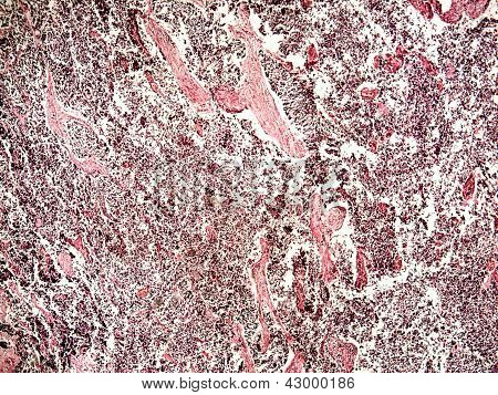Small-cell Lung Cancer Of A Human
