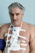 picture of pacemaker  - Person with pacemaker after heart surgery in a hospital ward - JPG