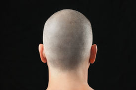 foto of shaved head  - Close - JPG