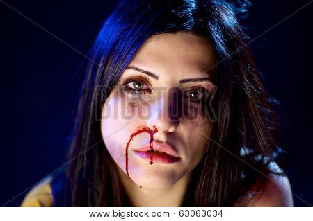 Woman With Bleeding Nose After Domestic Violence