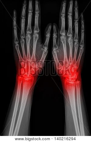 Film x-ray hand of man with arthritis