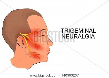 illustration of a male head. trigeminal neuralgia. neuroscience