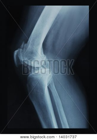 x-ray film of knee