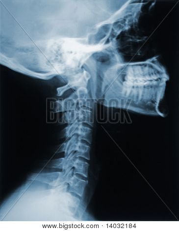This is an X-ray of the neck