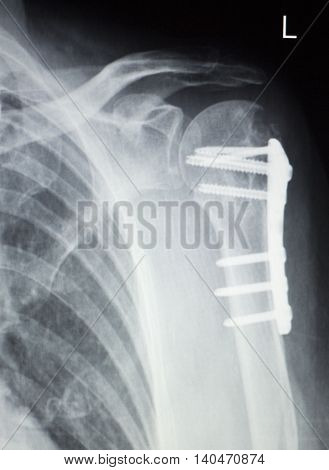 Shoulder Orthopedics Implant Xray