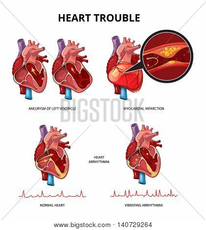 Heart disease vector infographics. Medical human heart infographic information illustration