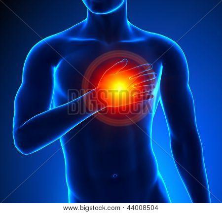 Coração - ataque macho