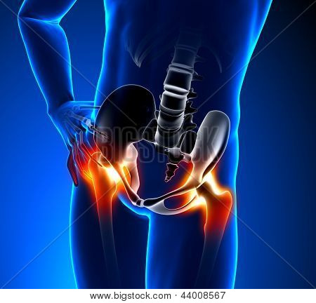 Hip Pain Male