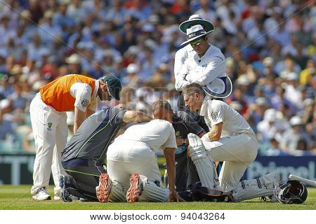 LONDON, ENGLAND - August 21 2013: Shane Watson gets some medical attention  after being hit on the head during day one of the 5th Investec Ashes cricket match between England and Australia