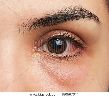 Eye With Infection